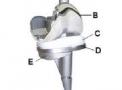 AKS - Anatomic Knee System – Para Revisão