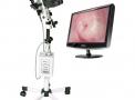 Colposcópio CP14 3X + LCD + Microcâmera
