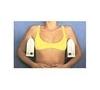 imagem de Aparelho para tratamento do suor excessivo nas axilas - Anidronic