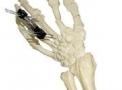 imagem de Fixador Externo Fixo Mini Dinâmico e Articulado – Tipo Colles