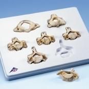 Kit com 7 BONElike™ Vértebras Cervicales