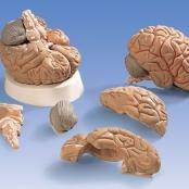 Cérebro com Artérias, 5 partes
