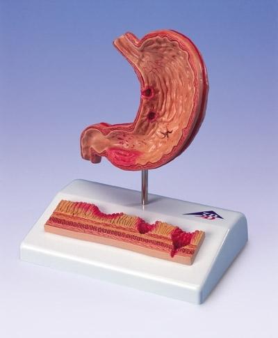 Estômago com Úlceras Gástricas