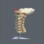 Coluna Vertebral Cervical TGD-0142-A