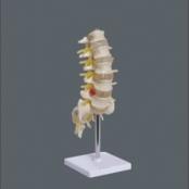 Coluna Vertebral Lombar TGD-0145-B