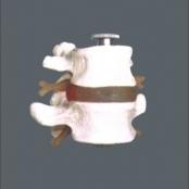 2 Vértebras lombares com discos TGD-0153-A