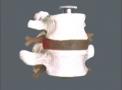 imagem de 2 Vértebras lombares com discos TGD-0153-A