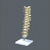 Coluna Vertebral torácica TGD-0143-A