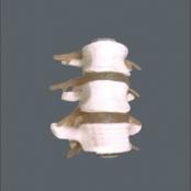 3 Vértebras lombares com discos TGD-0153-B