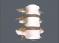 imagem de 3 Vértebras lombares com discos TGD-0153-B