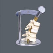 Demonstração da Movimentação das vértebras Flexível TGD-0155-C