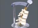 imagem de Demonstração da Movimentação das vértebras Flexível TGD-0155-C