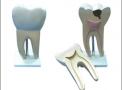 imagem de Dente Molar Ampliado - Saudável e com Cáries