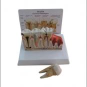 Patologia dos dentes c/ prancha explicativa