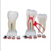 Dente Molar Ampliado 8 partes c/ evolução da Cárie