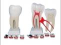 imagem de Dente Molar Ampliado 8 partes c/ evolução da Cárie