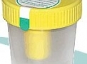 imagem de Frasco Coletor de Urina