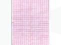 Papel para ECG tipo cardiopágina no formato A4 para aparelho Dixtal embalagem com 1000 folhas